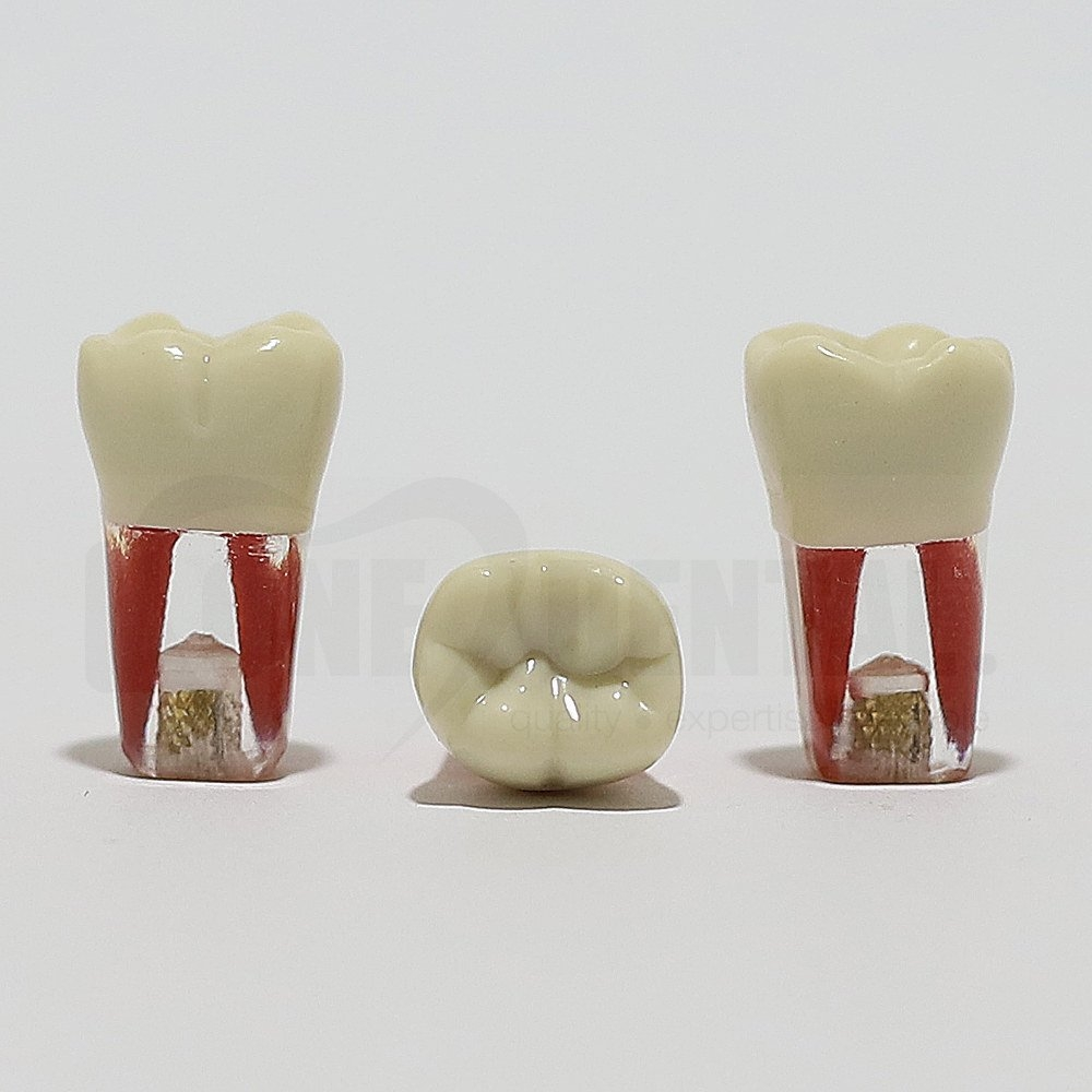 Endo Tooth 46 for ADC Model