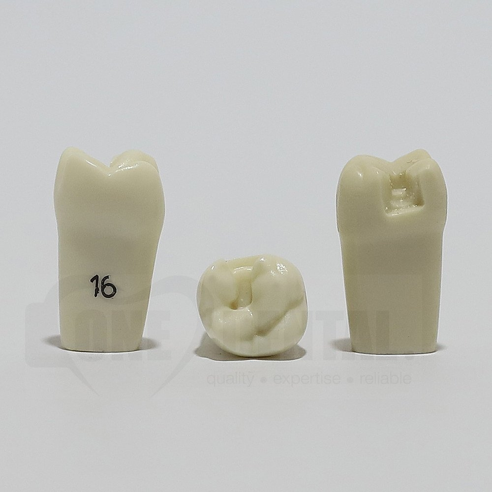Prep Tooth 16MO for ADC Model