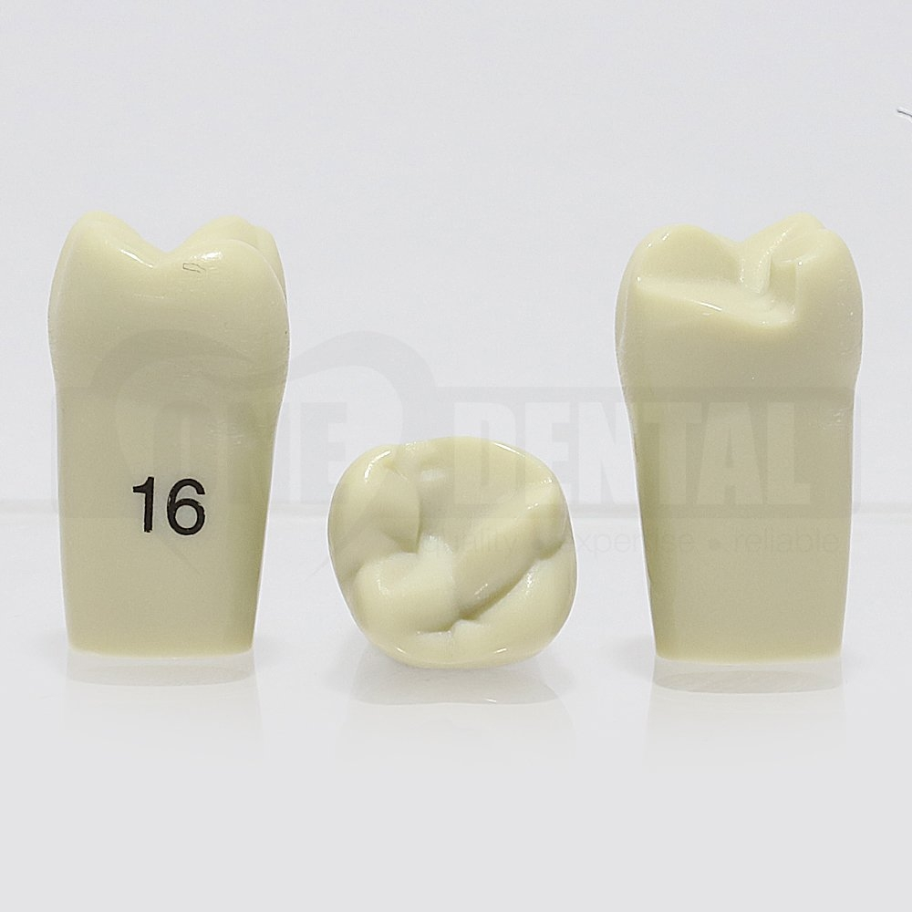 Prep Tooth 16 MOL for ADC Model