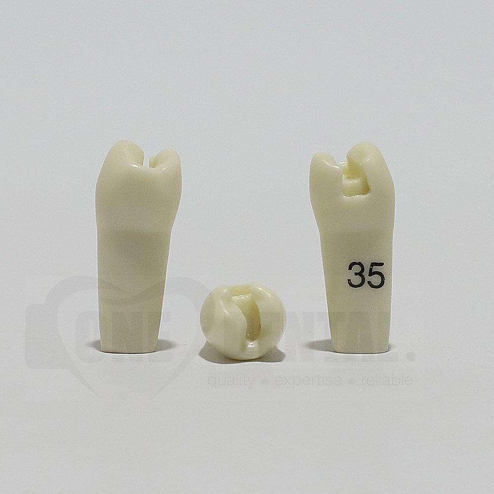 Prep Tooth 35MO for ADC Model