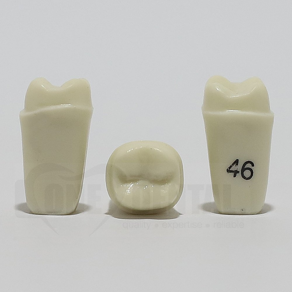 Prep Tooth 46 Full Crown