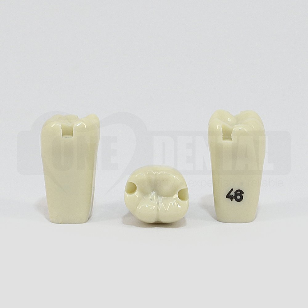 Prep Tooth 46 Mesial and Distal for ADC Model