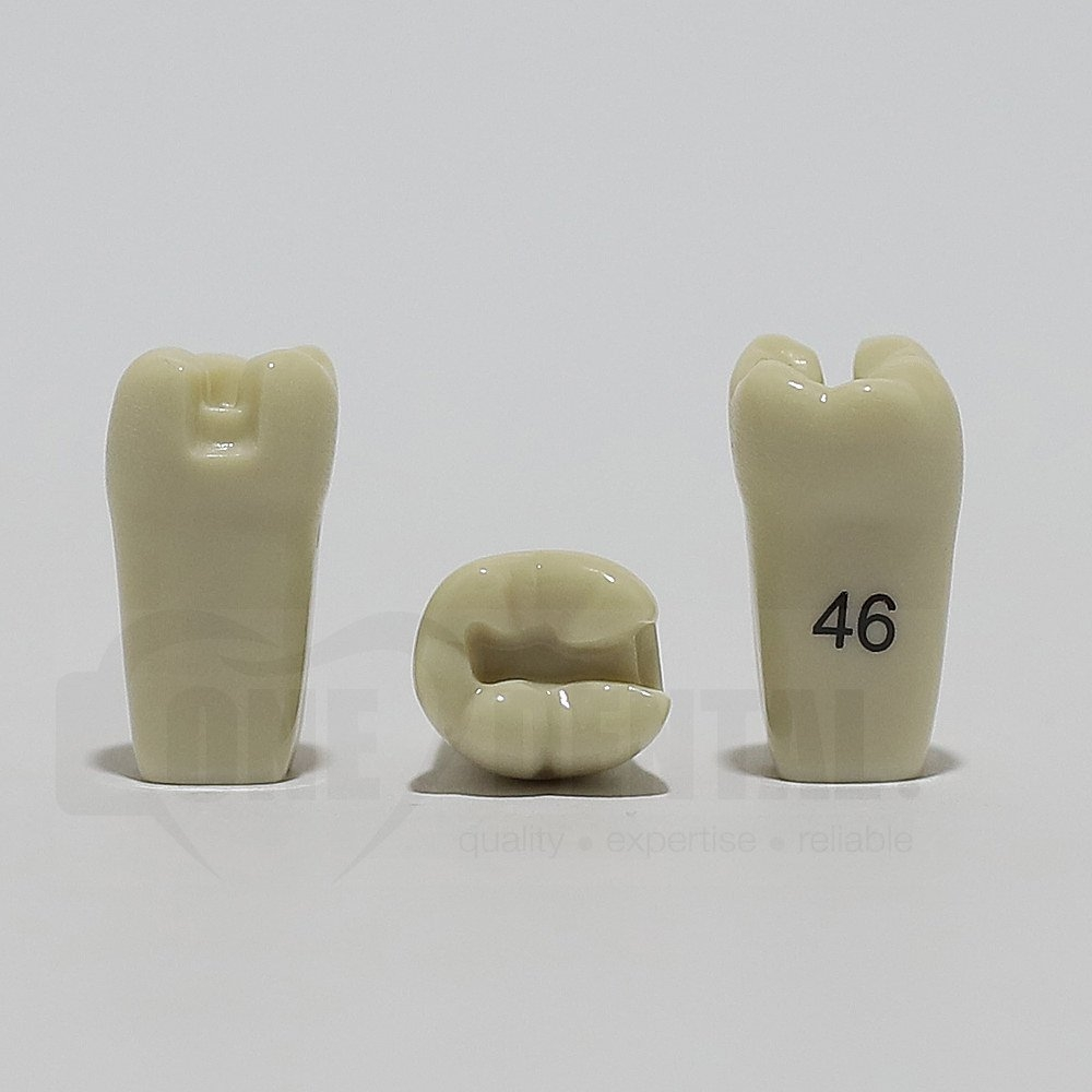 Prep Tooth 46MO for ADC Model