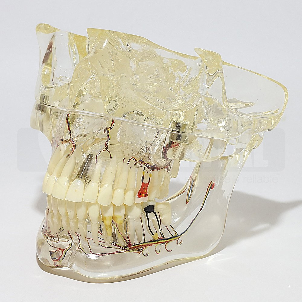 Solid Transparent Pathological Model Full Jaw with Nerve inc Sinus - Click for more info