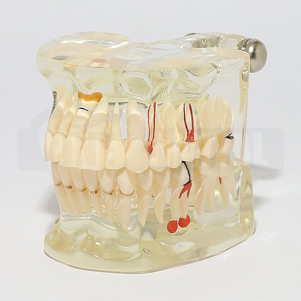 Solid Transparent Adult Pathology Model with Implant and edentulous space