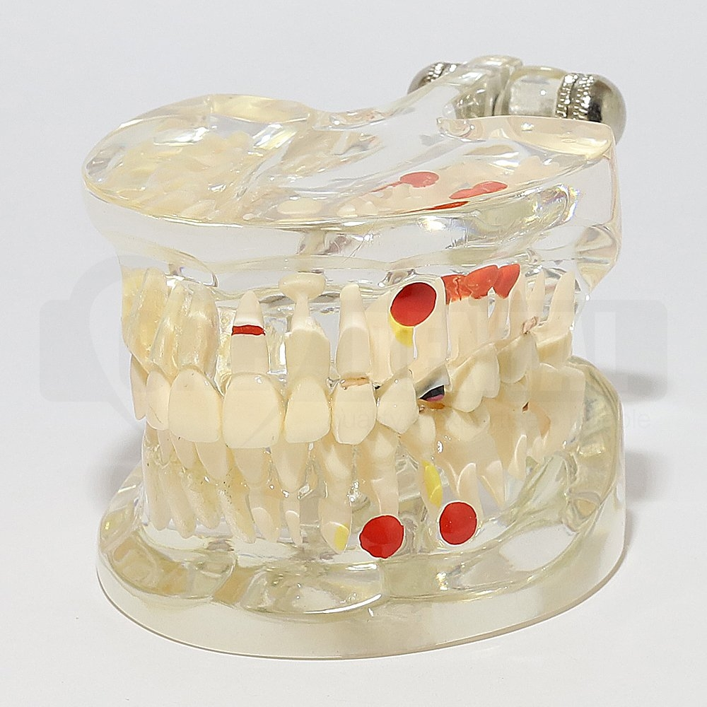 Solid Transparent Adult Model with Pathologies and Removable Teeth