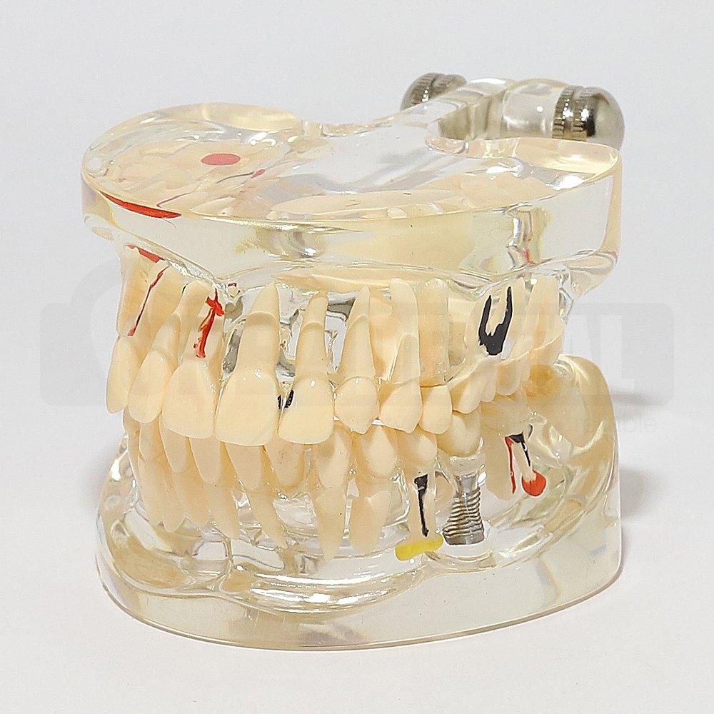 Solid Transparent Adult Model with Pathologies, Implant and Bridge