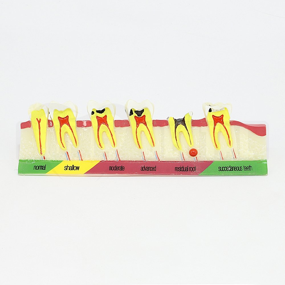 Caries Progression Model with 6 Stages