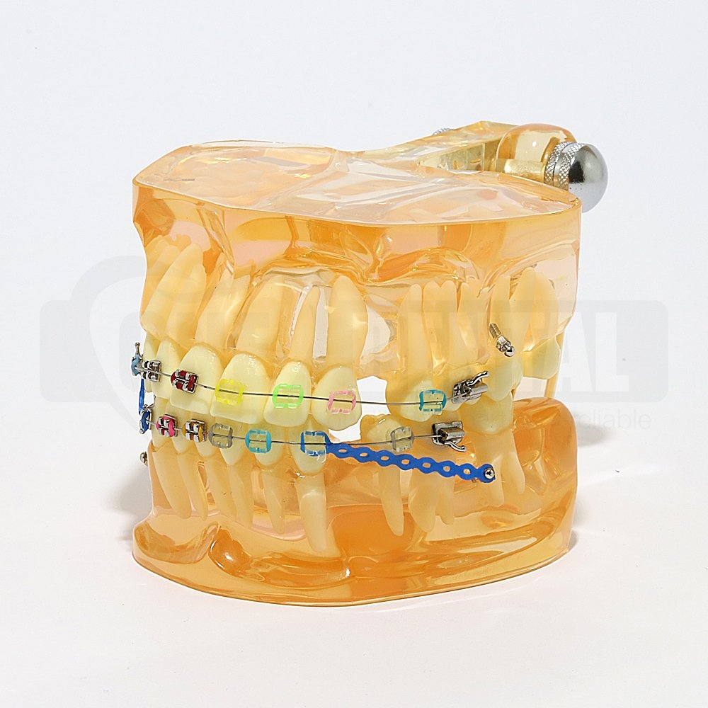 Adult Orthodontic Model Pre Banded with brackets