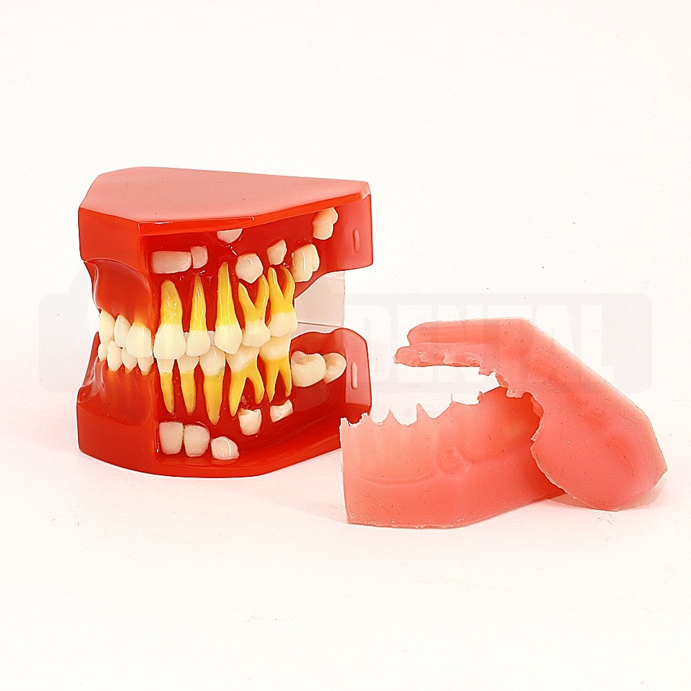 Paediatric Eruption Model with retractable gingivae