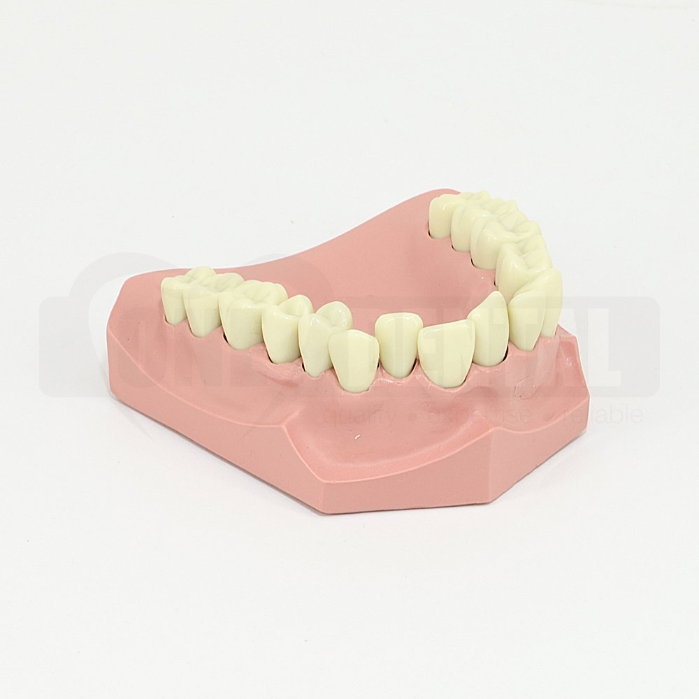 Ortho Model with crowded upper anteriors