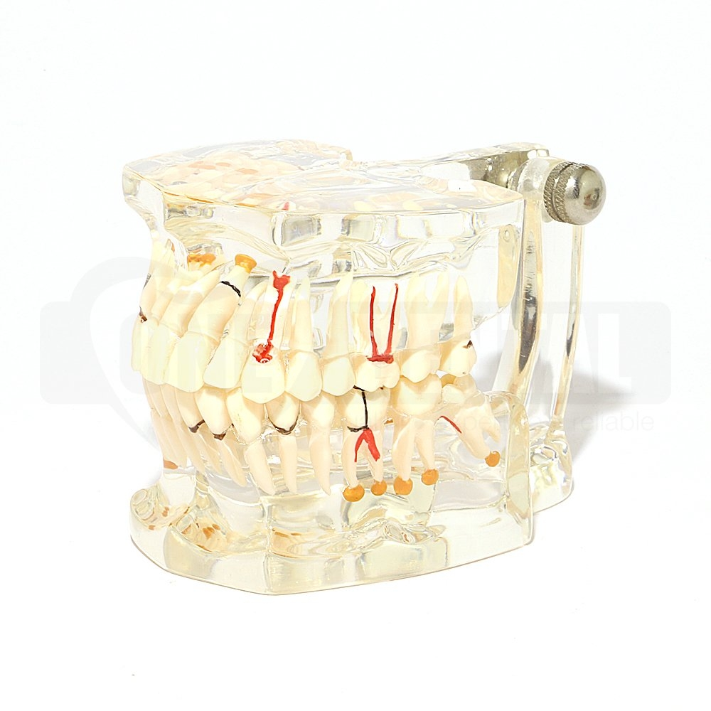 CLEAR CARIES & IMPLANT MODEL